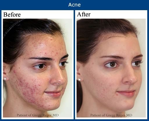 Proactive Before and After Pictures | ACNE Scars TREATMENT ,SOLUTION - Acne
