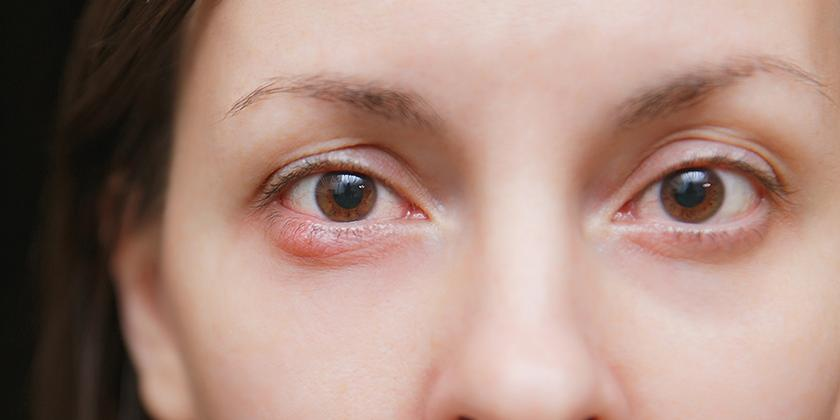 A Stye Inside The Eyelid?