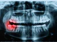Oral Surgery: What Does Insurance Cover?
